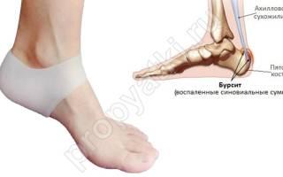 Бурсит пятки симптомы и лечение фото