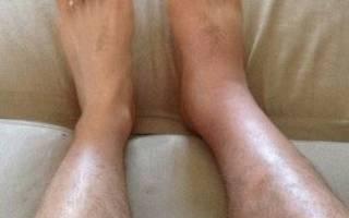 Опухоль в щиколотке правой ноги