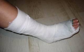 Симптомы перелома ноги внизу