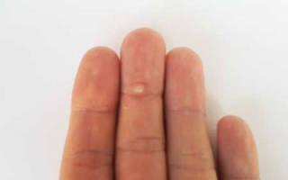 Шипига на пальце ноги лечение