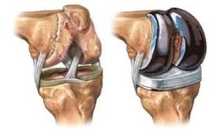 Отек после замены коленного сустава