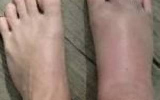 Отек ног при сахарном диабете лечение