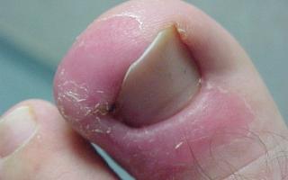 Загноение пальца на ноге у основания ногтя