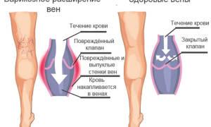 Какие упражнения делать при варикозе ног