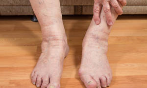 От чего опухают ступни ног у мужчин