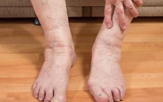 Почему сильно отекают ноги внизу у мужчин