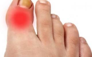 Хрящ на пальце ноги