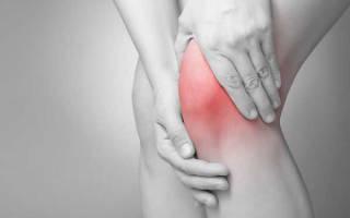 Сильное растяжение связок коленного сустава