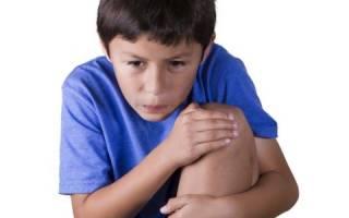 У ребенка болит коленка