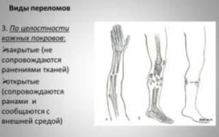 Как узнать сломана ли нога