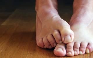 Утолщение ногтя на мизинце ноги