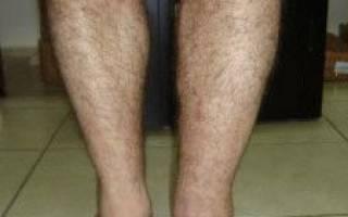 Отекают ноги внизу стопы и голень