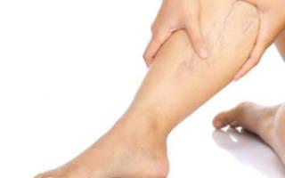 Тянет вены на ногах причины