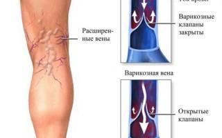 Болит вена под коленом сзади что делать