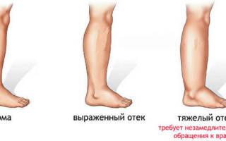 Лечение отеков при беременности в третьем триместре