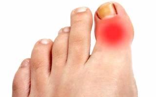 Вывих мизинца на ноге симптомы