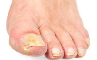 Ноготь на ноге стал толстым и желтым