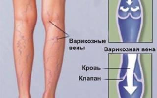 Симптомы заболевания вен и сосудов нижних конечностей