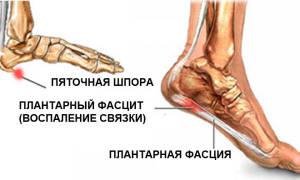 Опухоль ноги при пяточной шпоре