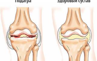 Подагра коленного сустава симптомы лечение