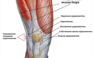 Болят мышцы ног выше колен спереди причины