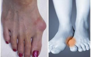 Как вылечить косточку на большом пальце ноги