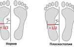 Как развить плоскостопие 3 степени