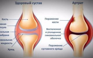Воспаление суставов стопы лечение снять воспаление