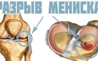 Боль в коленке правой ноги