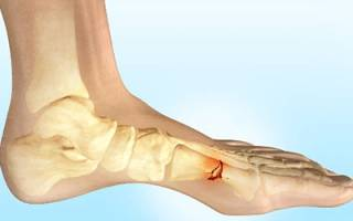 Относительным признаком перелома костей является