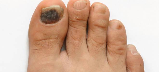 Удаление ногтя на большом пальце ноги грибок