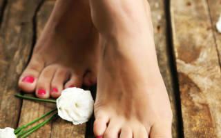 Косточки на ногах причины возникновения