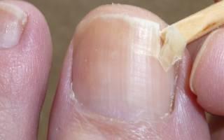 Ноготь трескается вдоль пластины лечение