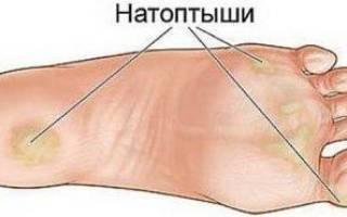 Мозоль на подушечке стопы как лечить