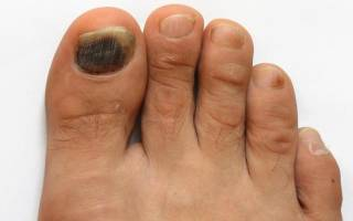 Потемнели ногти на больших пальцах ног причины