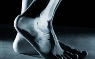 Ортопедические заболевания стоп