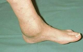 Можно ли вылечить артроз голеностопного сустава