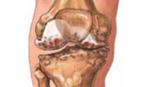 Реактивный артрит лечение народными средствами