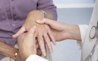 Как лечить полиартрит ног