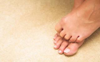 Опухают пальцы на ногах и болят
