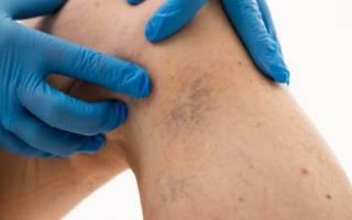 Флеботромбоз нижних конечностей симптомы фото и лечение