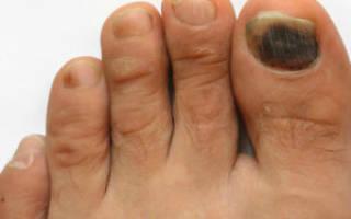 Почему чернеет большой палец на ноге