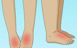 Как избавиться от опухоли на ноге