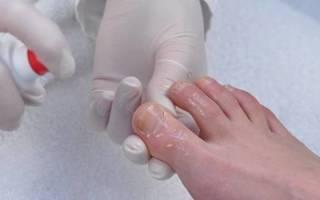 Как излечить грибок на ногтях ног