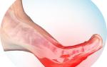 Что делать если сводит пальцы на ногах