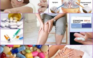 Лекарство для суставов коленей