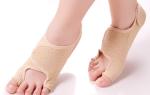 Искривление мизинца на ноге