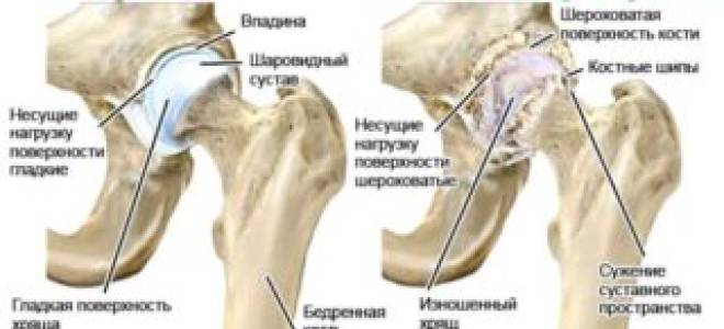 Хондроз тазобедренного сустава симптомы