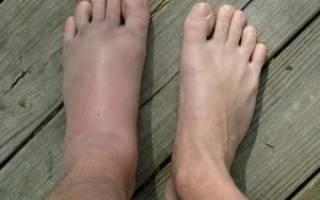Чем обезболить ушиб ноги