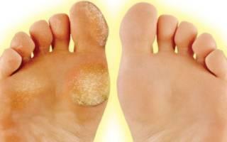 Мазь от натоптышей на пальцах ног
